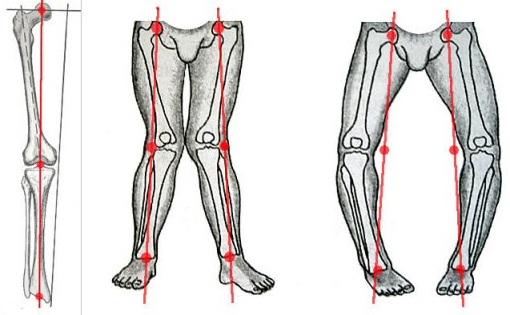 Искривление конечностей при остеохондрозе коленного сустава