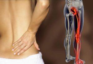 Как и чем лечится неврит бедренного нерва
