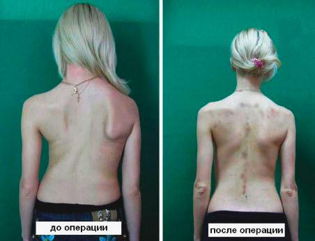 Правосторонний сколиоз: до и после операции