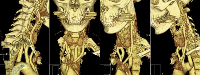3D визуализация посредством МРТ при остеохондрозе