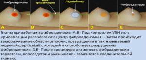 Как проводится операция по удалению фиброаденомы молочной железы