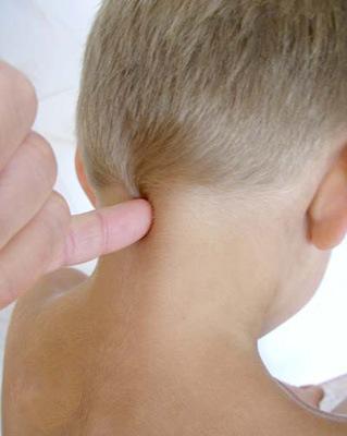 Диагностика подвывиха шейного атланта у ребенка