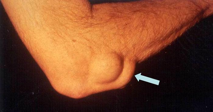 Последствия артрита локтевого сустава