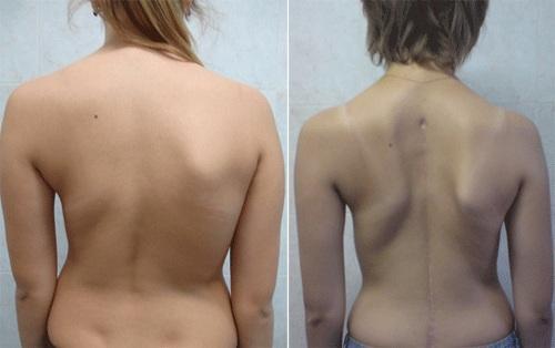 Результаты лечения правостороннего сколиоза