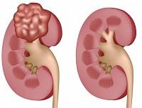 Почечноклеточная карцинома