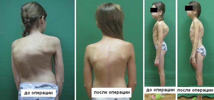 Результаты операции при сколиозе у ребенка
