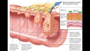 Лечение и последствия карциномы кишечника