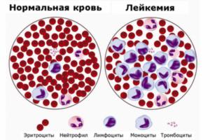 миеломы крови