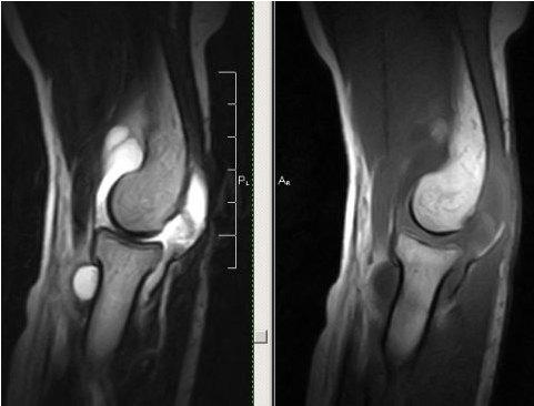 Визуализация локтевых суставов на МРТ