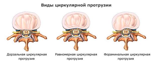 Виды циркулярной протрузии