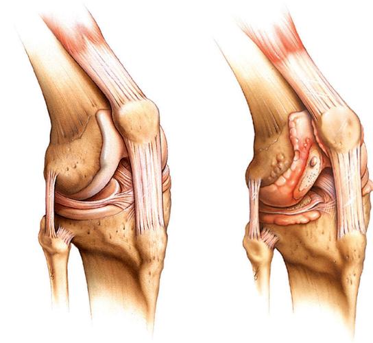Из-за скопления гнойных масс происходит деструкция суставной и окружающих ее тканей