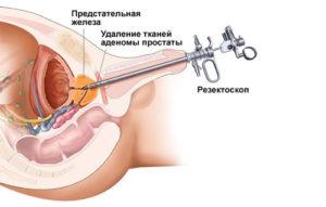 средства от простатита и аденомы простаты