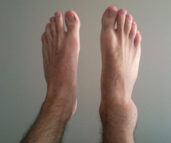 Отеки голеностопного сустава обычно огромны из-за физиологии этого отдела конечности
