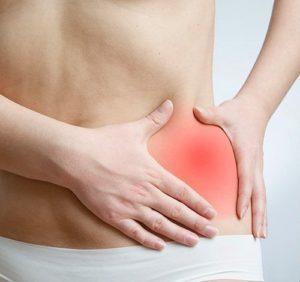 Симптомы и лечение защемления грыжи живота