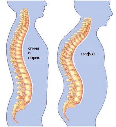 Нормальная спина и кифозная