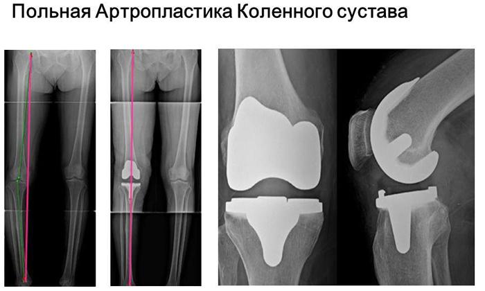 Польная артропластика коленного сустава