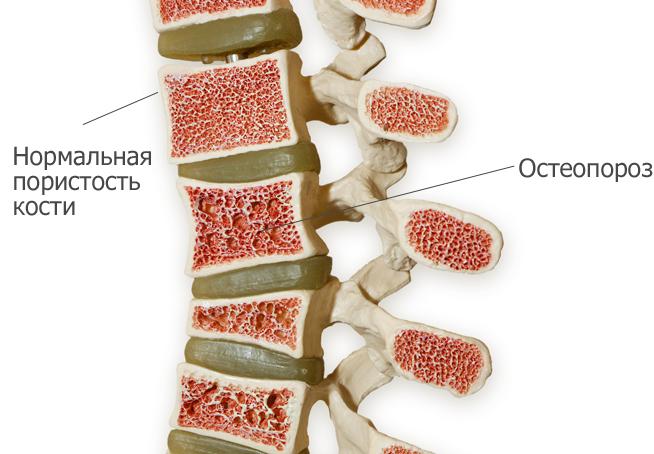 Пораженный остеопорозом позвоночник