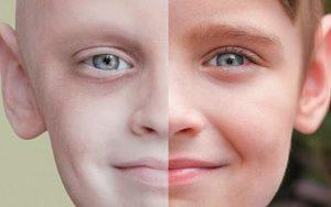 признаки лейкоза у взрослых и диагностика