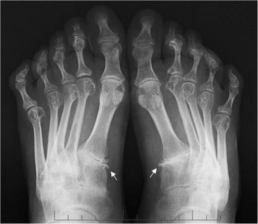 Характерные признаки симметричного артрита мелких суставов ног