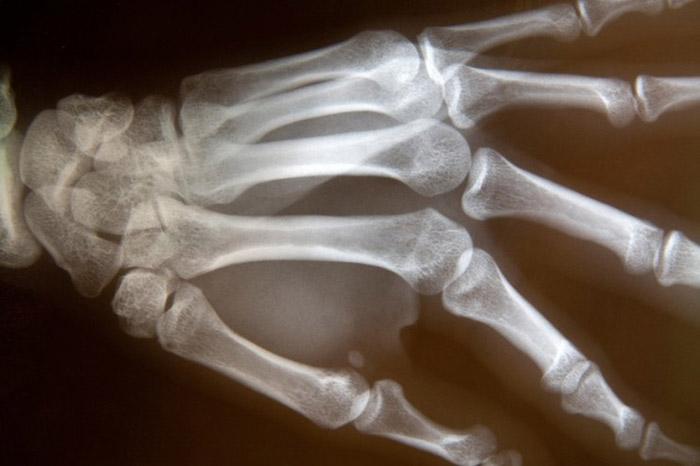 Пораженные остеопенией кости на рентгене