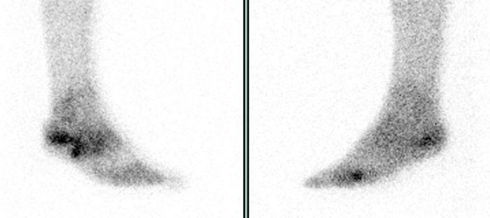 Остеосцинтиграфия костей ног