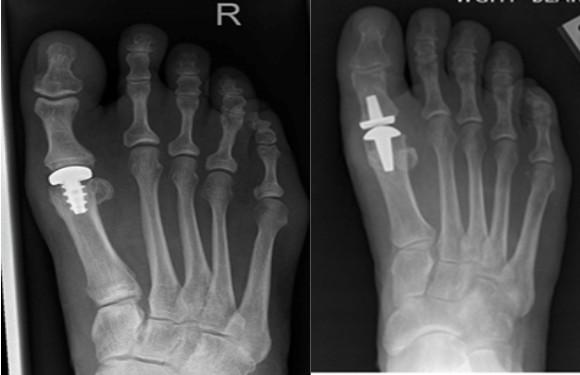 Артроз плюснефаланговых суставов по данным рентгенографии