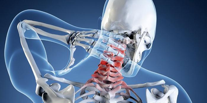 Локализация болей при грыже шейного отдела позвоночника