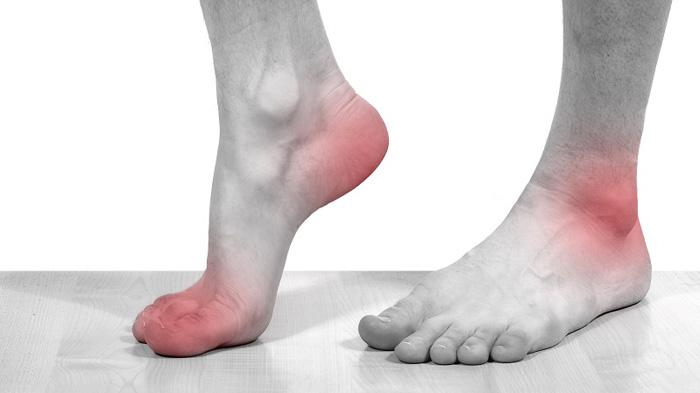 Пирофосфатная артропатия часто поражает нижние сегменты ног