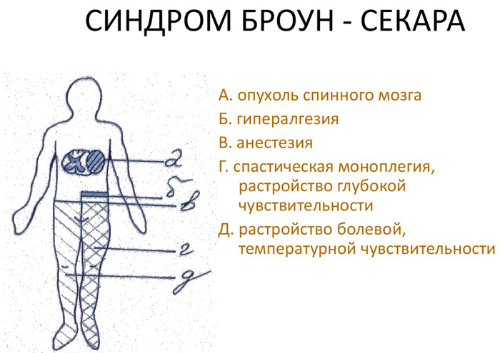 Основные симптомы/признаки синдрома Броун-Секара