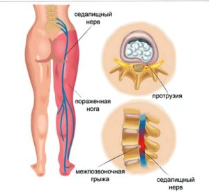 Какие уколы делают при защемлении седалищного нерва
