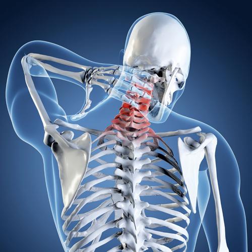 Боли в позвоночнике — одно из основных показаний к рентгену