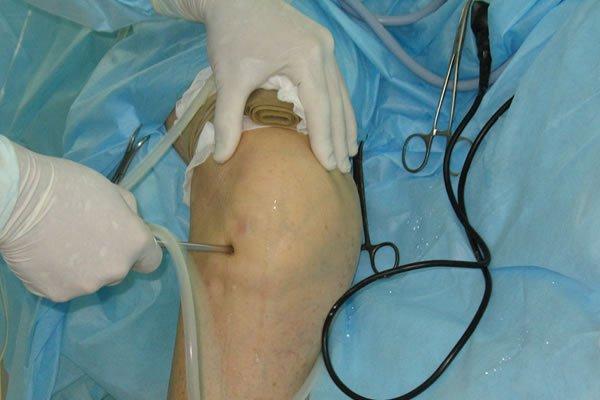 Процедура артролиза проводится при стационарах с отделением ортопедии и травматологии