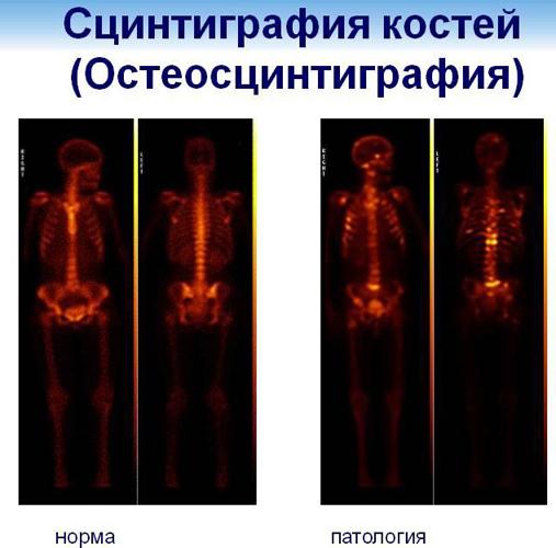 Результаты остеосцинтиграфии костей