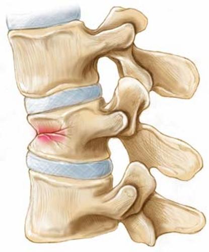Боль при остеопорозе в результате микротравмы позвоночника