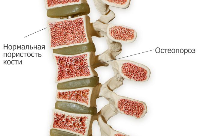 Здоровый и пораженный остеопорозом позвоночник