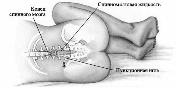 Как проводится люмбальная пункция