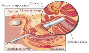 Как проводится подготовка к биопсии предстательной железы