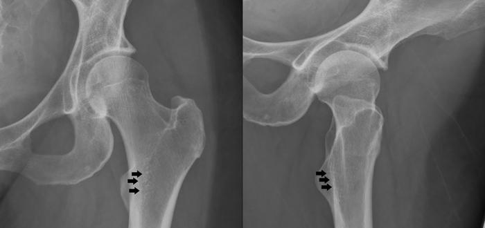 Остеопороз тазобедренных костей на рентгене