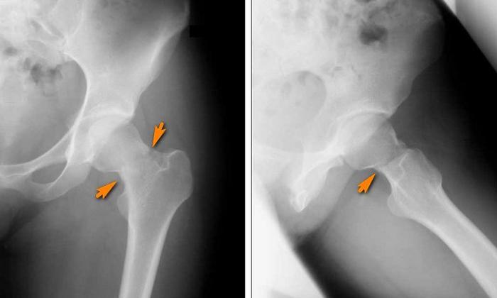Стрессовый перелом тазобедренных костей на рентгеновском снимке