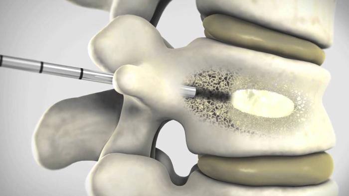 Пункционная игла при вертебропластике