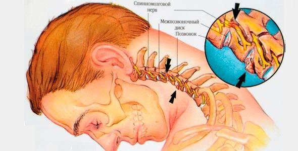 Свинг-машина имеет умеренную эффективность в лечении болезней шеи