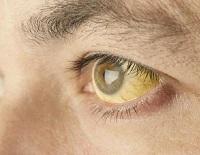 Желтые склеры глаз