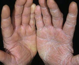 Сухость ладоней рук