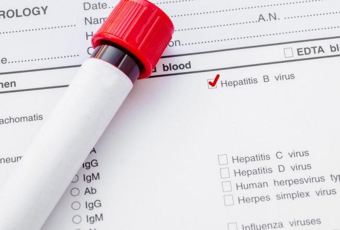 Анализ на гепатит С и В