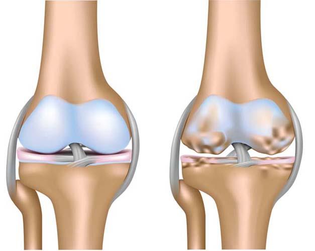 Здоровое и пораженное остеопорозом колено