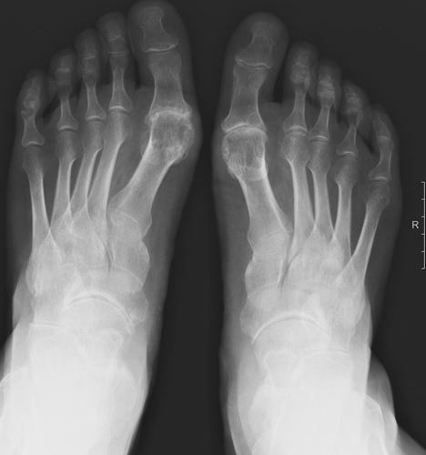 Основой диагностики является визуализирующее обследование (рентген, МРТ или КТ)