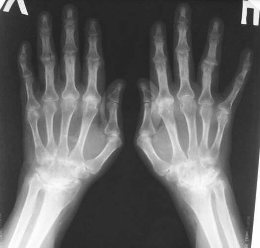 Поражение мелких суставов на снимке рентгенографии