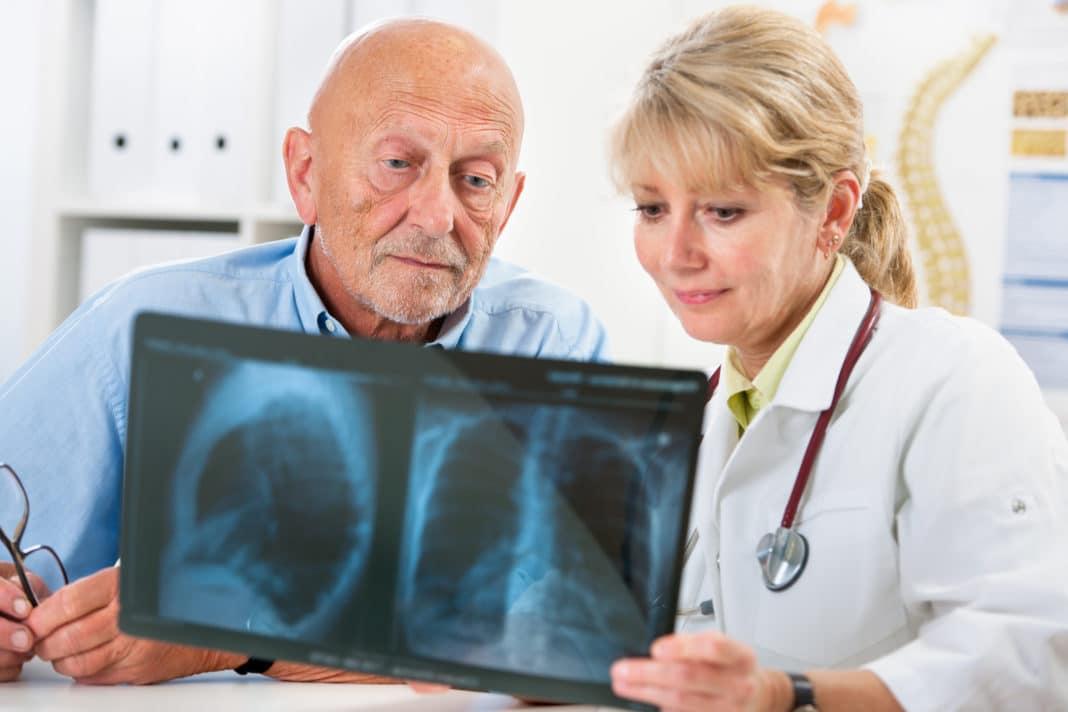 Лечение и диагностика заболевания