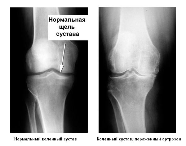 Пораженный артрозом коленный сустав на рентгене