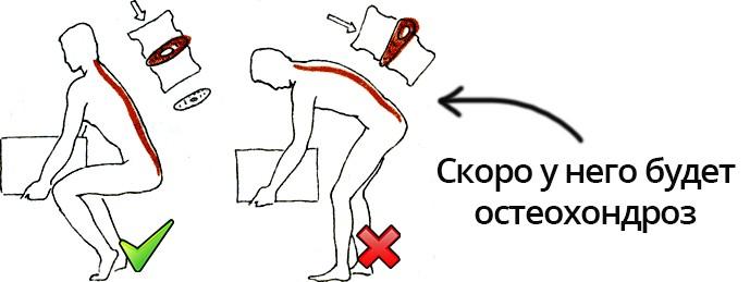 Неправильный подъем тяжестей - причина остеохондроза